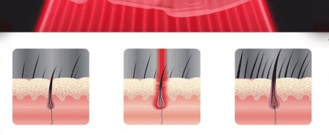 Лазеротерапия кожи головы