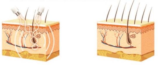 Микротоковая терапия кожи головы